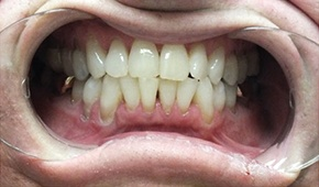 Flawless smile following professional teeth whitening