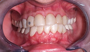 Discolored and decayed teeth and damaged gums