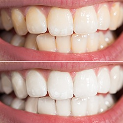 Closeup of smile before and after whitening