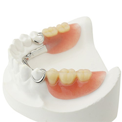 Partial dentures on smile model