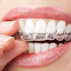 Closeup of teeth as clear aligner is placed